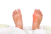 The Different Types of Bunions