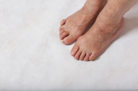 The Types of Hammertoes